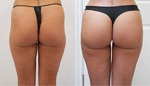 before after photos plastic surgery london vaser liposuction