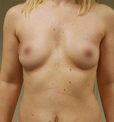 Vaser Liposuction Before & After Patient #246