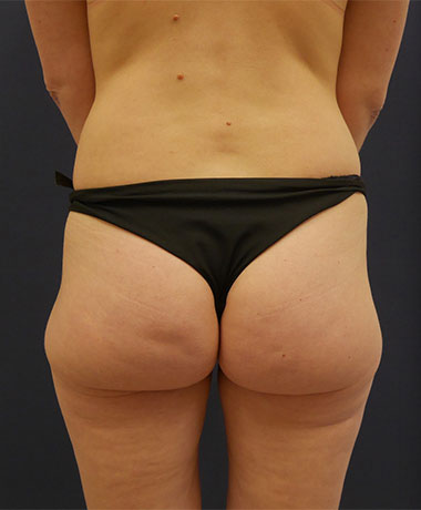 Vaser Liposuction Before & After Patient #225