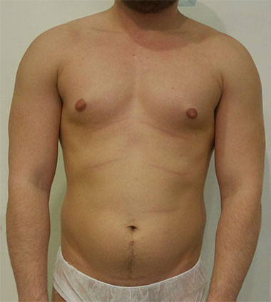 Vaser Liposuction Before & After Patient #215