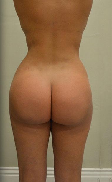 Vaser Liposuction Before & After Patient #196
