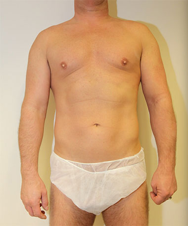Vaser Liposuction Before & After Patient #186