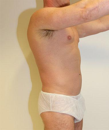Vaser Liposuction Before & After Patient #186