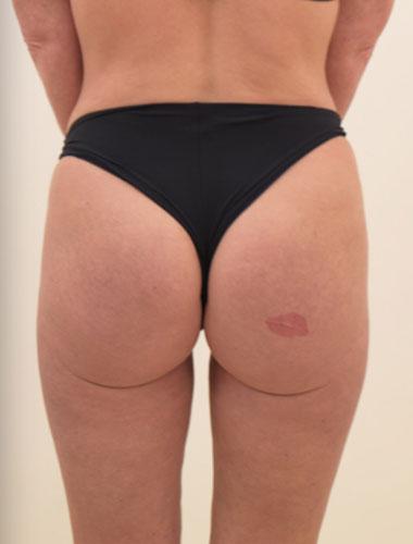Vaser Liposuction Before & After Patient #279