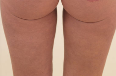 Vaser Liposuction Before & After Patient #279
