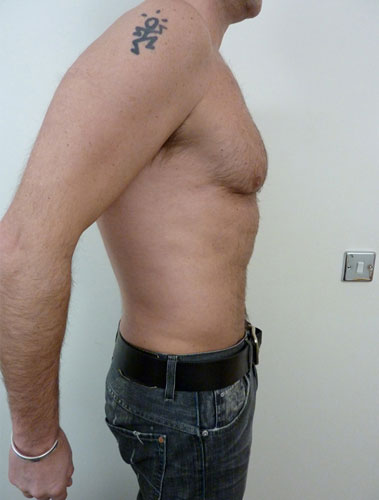 Vaser Liposuction Before & After Patient #285