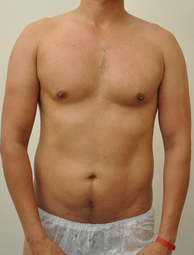 Vaser Liposuction Before & After Patient #294
