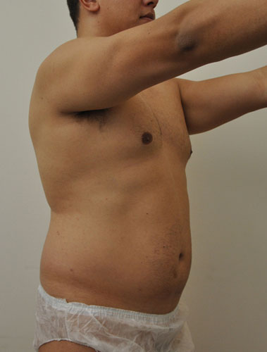 Vaser Liposuction Before & After Patient #299
