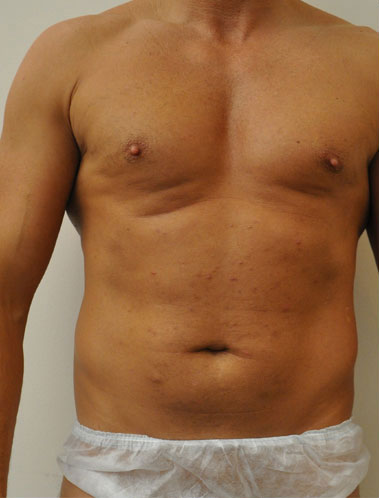 Vaser Liposuction Before & After Patient #313